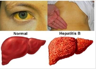 gejala hepatitis